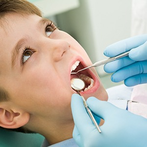 A young boy having his teeth checked before receiving dental sealants