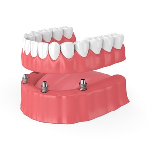 four implant-retained dentures