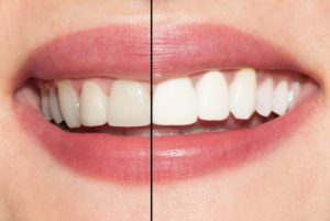 An image of before and after teeth whitening.